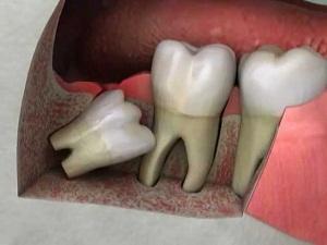 нужно ли лечить зуб мудрости или лучше его убрать