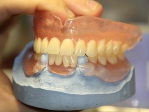 зубные протезы акри фри съемные