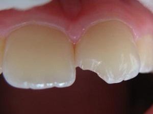 Крошатся зубы какие витамины пить