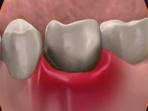 воспаление десны около зуба лечение
