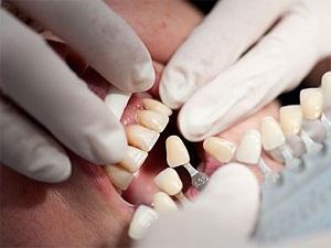 наращивание зубов цена
