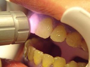 лазерное отбеливание зубов отзывы