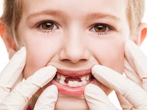 сколько молочных зубов выпадает у детей