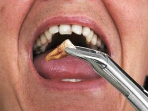 полоскать рот перекисью водорода