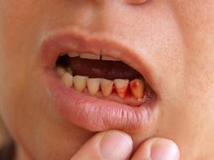 Кровоточивость дёсен лечение лекарства и препараты
