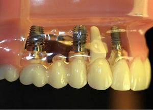 возможные последствия и осложнения имплантации зубов