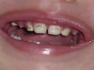 почему крошатся зубы у взрослого человека