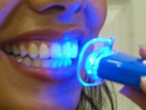 лазерное отбеливание зубов цена