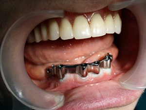 зубные протезы съемные нейлоновые цена и фото