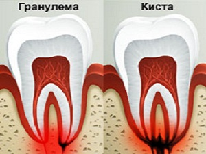 Гранулема зуба лечение таблетки