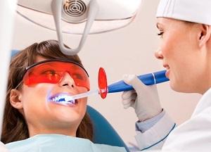 особенности лазерного отбеливания зубов