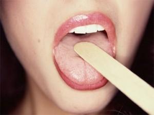 Желтый налет на языке чем лечить