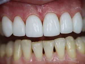 этапы имплантации зубов с наращиванием костной ткани