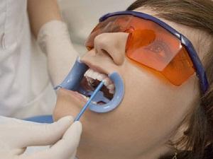 фторирование зубов мнение специалистов