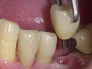 одномоментная имплантация зубов