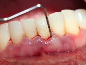 Что такое пародонтит зубов