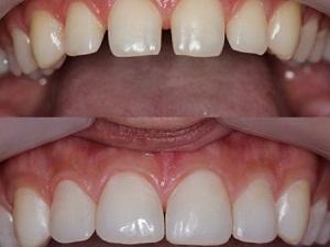 наращивание костной ткани при имплантации зубов отзывы