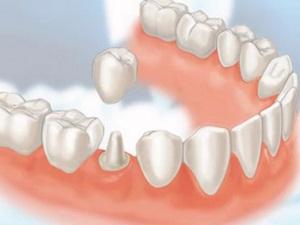коронка на зуб фото до и после