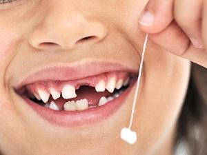 какие зубы молочные