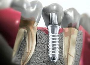 разновидности и стоимость имплантации зубов