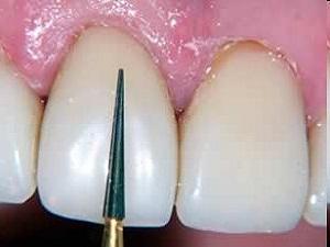 виниры на зубы что это такое