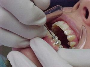 можно ли удалять зубы после установки брекетов