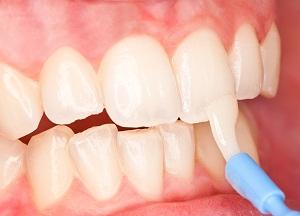 как сделать фторирование зубов