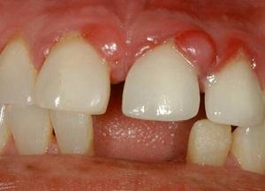 как избавиться от гранулемы зуба