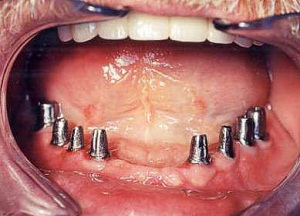 как устанавливают зубные импланты