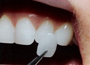 особенности установки люминиров на зубы