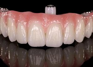 особенности съёмных зубных протезов при полном отсутствии зубов