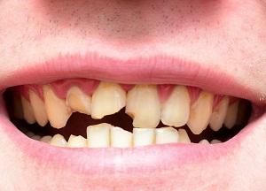 Если у ребенка крошатся молочные зубы