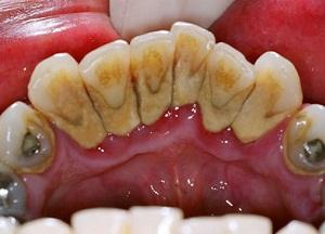 методы удаления зубного камня в домашних условиях