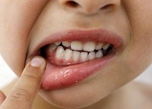 методы лечения гингивита у детей