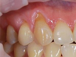 отошла десна от зуба что делать