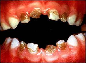 Картинки Зубы Гнилые