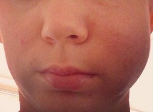 болит зуб опухла щека как снять опухоль