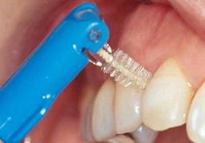 ершики для зубов купить
