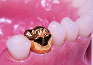 коронки на зубы какие лучше цена