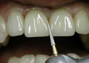 реставрация зубов отзывы