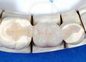 что такое адгезивный мостовидный зубной протез