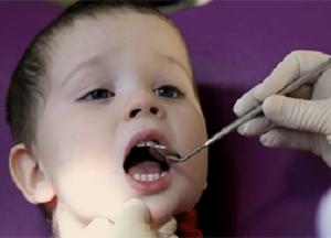 методы лечения воспаления десен у детей