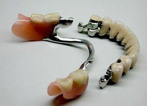 что такое бюгельные зубные протезы