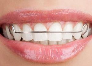 как использовать пластины для выравнивания зубов