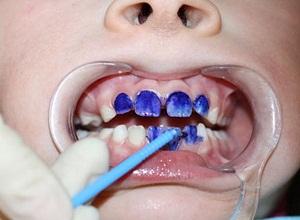 Болит молочный зуб у ребенка что делать в домашних условиях