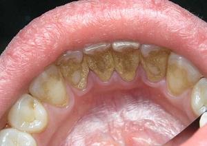 удаление зубного камня ультразвуком отзывы цена