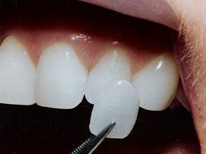 художественная реставрация зубов цены