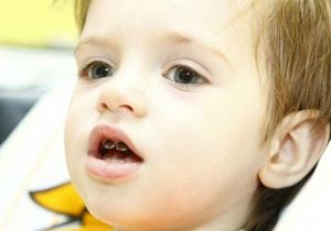 Серебрение зубов препарат
