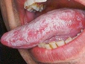 молочница во рту у взрослых фото