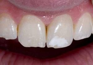 Пятна на зубах белые что делать